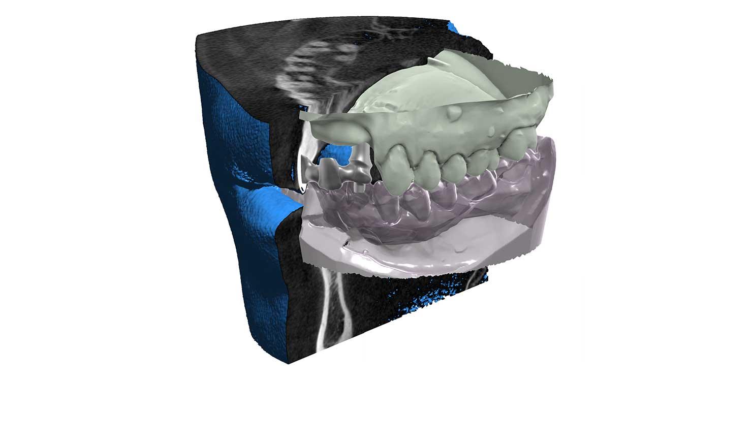 Wizualizacja obrazu z tomografu przy projektowaniu