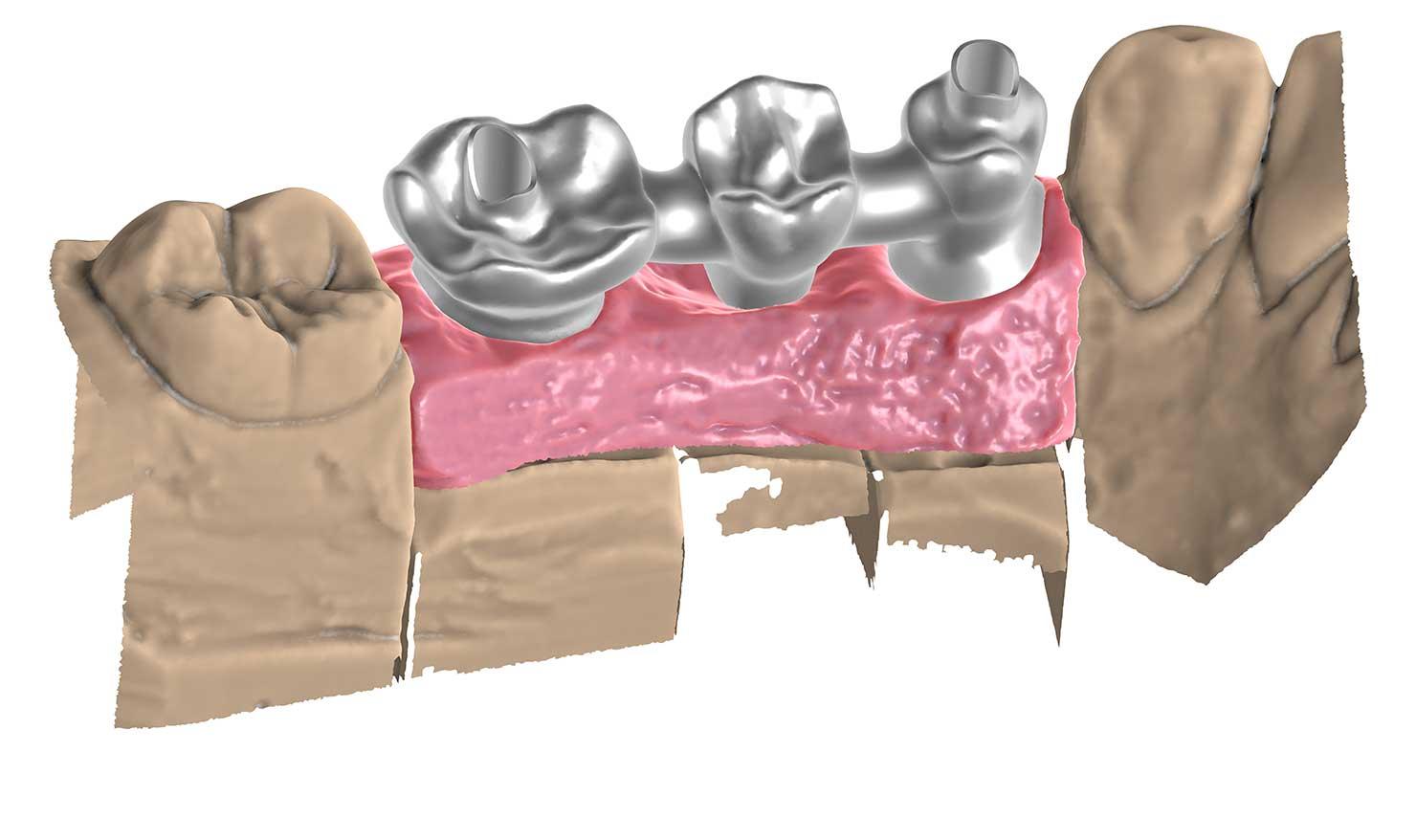Most na implantach