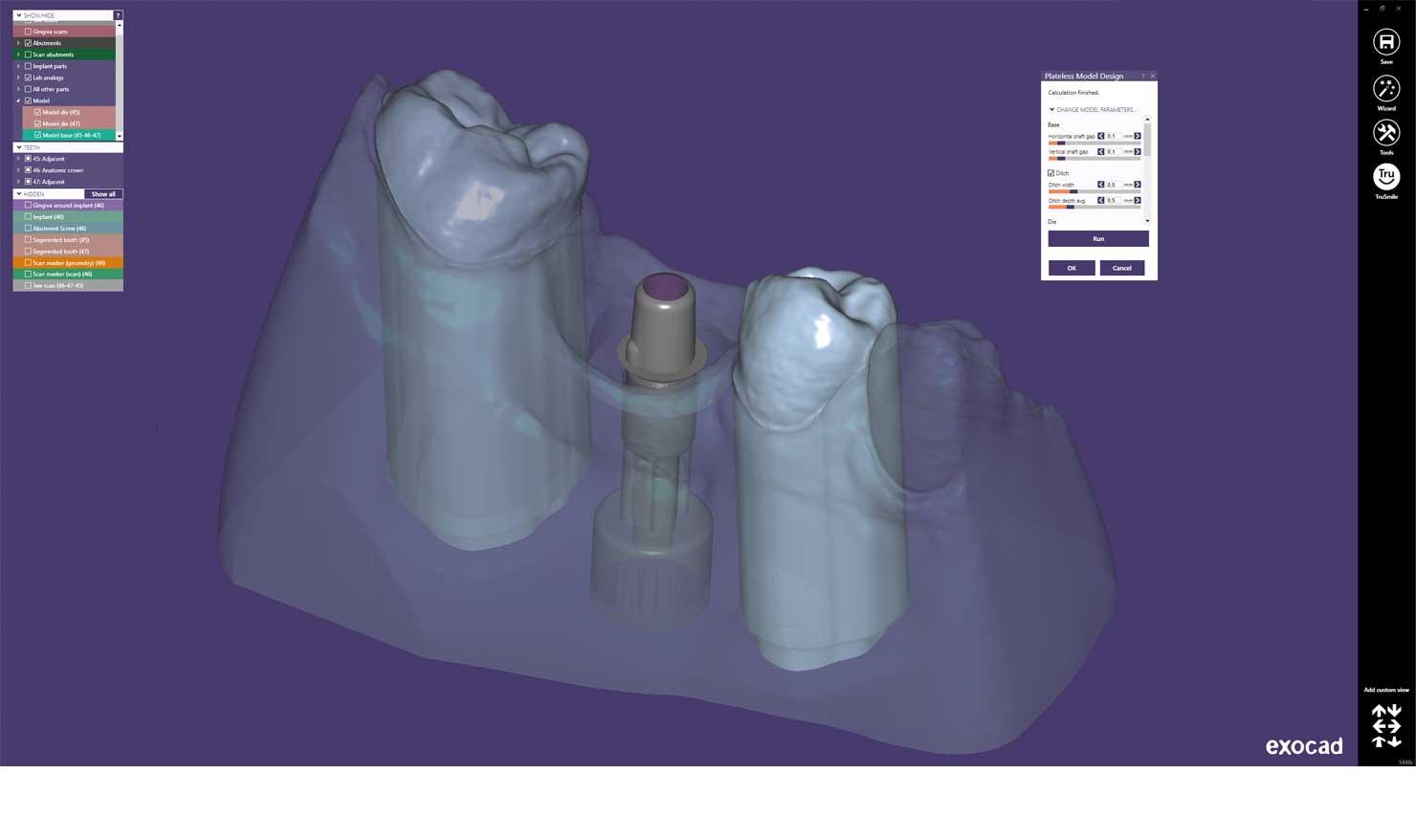 product-maincarousel-model-creator-screenshot-model-with-implant