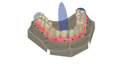 product-maincarousel-standard-version-automatric_tooth_placement
