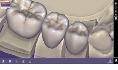 product-maincarousel-standard-version-dentalcad_01