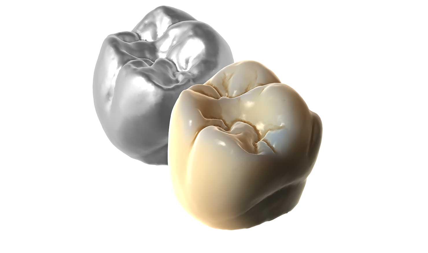Realistyczny rendering zębów
