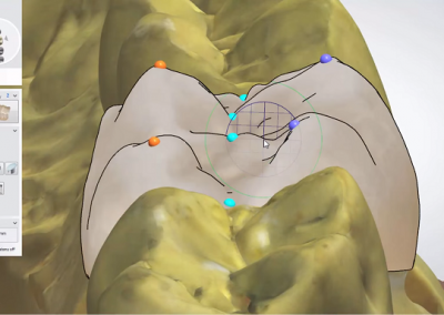 3Shape: Korona anatomiczna