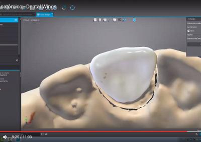 DWOS: Korona anatomiczna