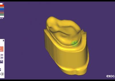 exocad: Podbudowa do licowania z podparciem dla protezy szkieletowej