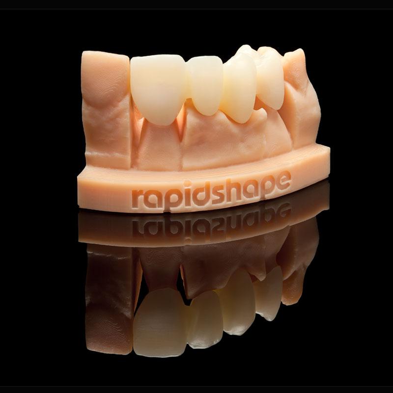 rapidshape-druk3d-korony-tymczasowe
