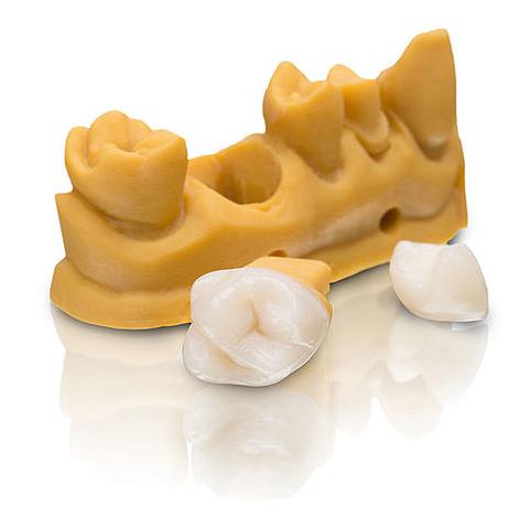 VarseoSmile Crown Plus